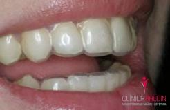 Utilização de moldeiras para clareamento dental caseiro supervisionado. No seu interior é aplicado o gel clareador.