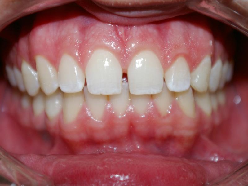 1A-Paciente portador de diastema ântero superior