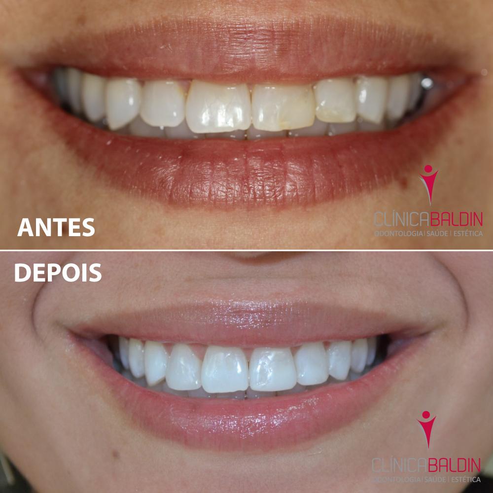 Você sabe os tipos de clareamento dental disponíveis?