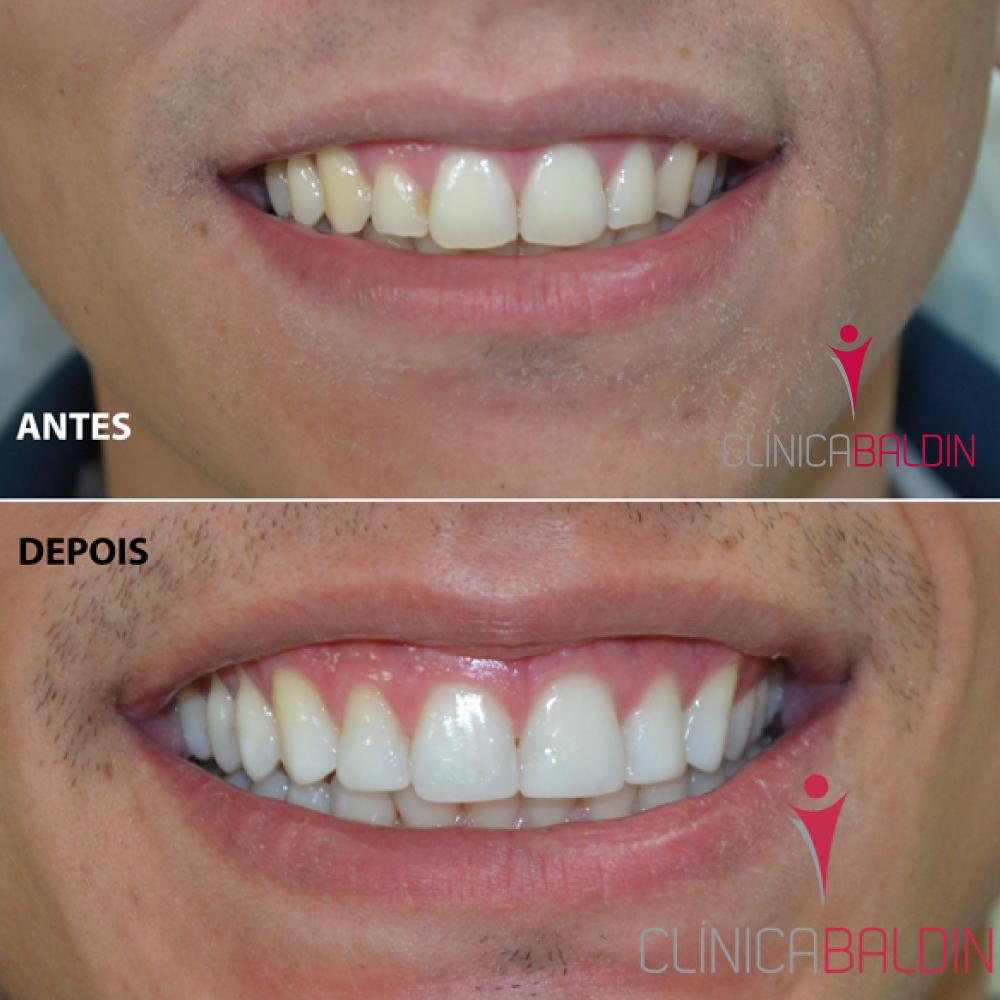 Remodelação Cosmética do Sorriso