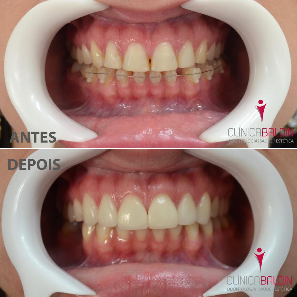 Caso antes e depois com afastador labial
