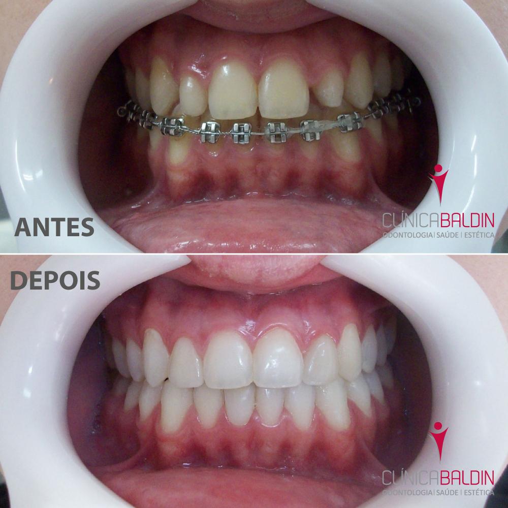 Tratamento de dentes conóides