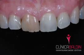 Exemplo de dente não vital