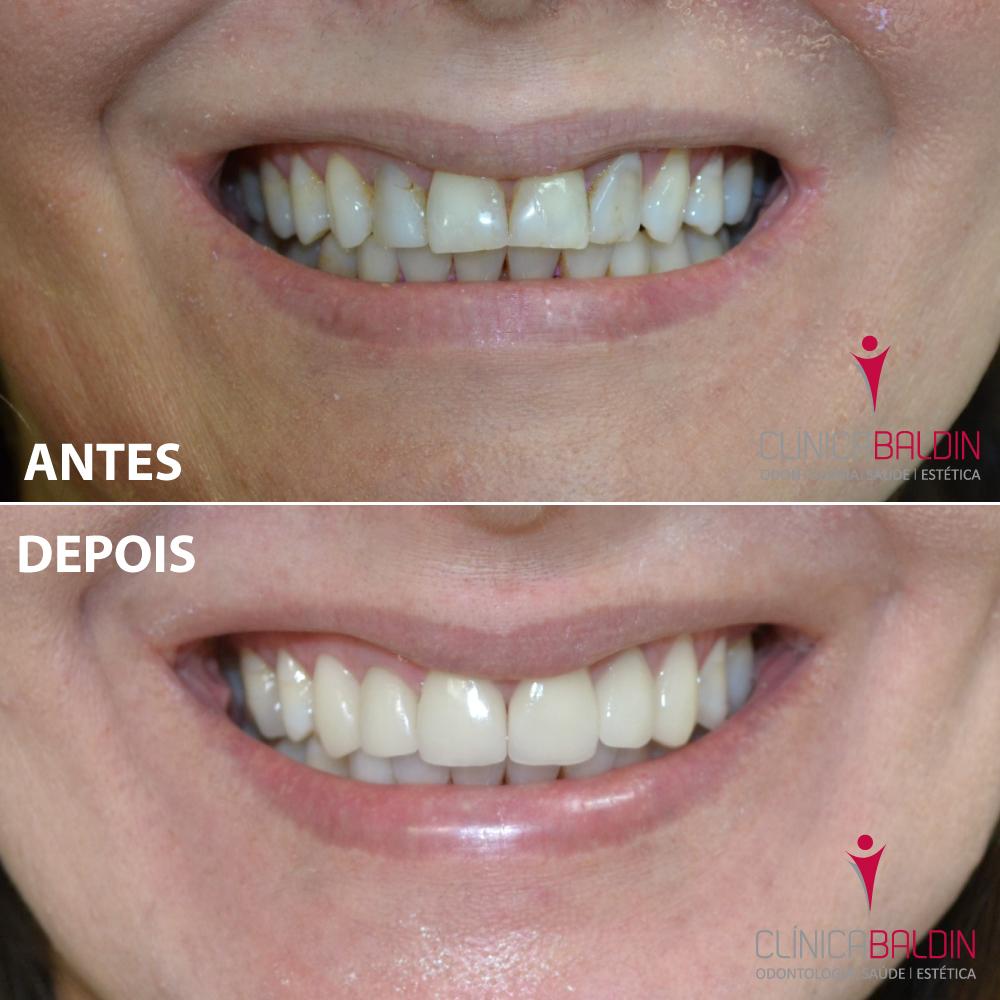 Facetas laminadas em porcelana aplicadas para harmonização de cor e formato dos dentes anteriores superiores