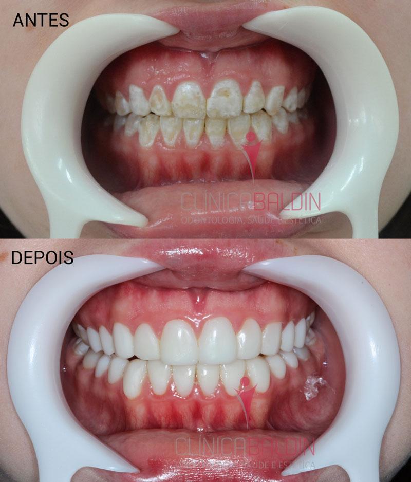 Causas e tipos de manchas nos dentes