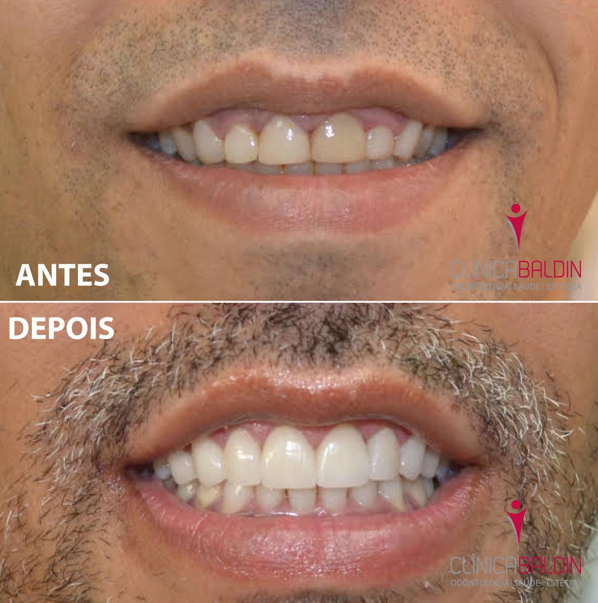 sorriso totalmente reabilitado pela associação de tratamentos gengiva/dentes