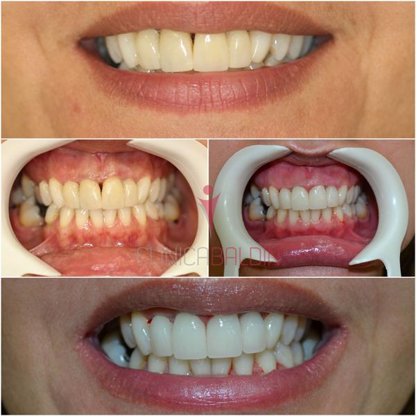 Protese dental metal free