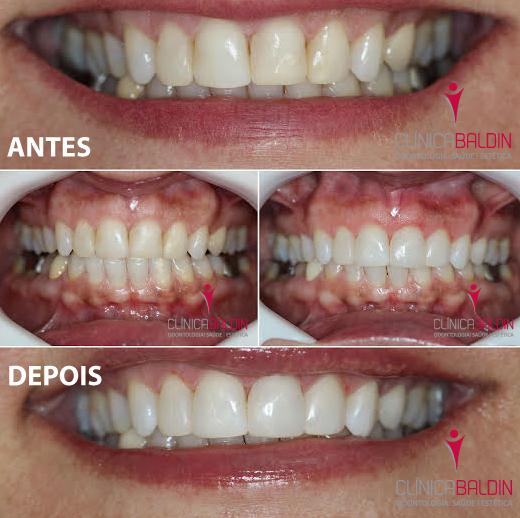 Facetas diretas em resina composta em dentes anteriores com restaurações irregulares
