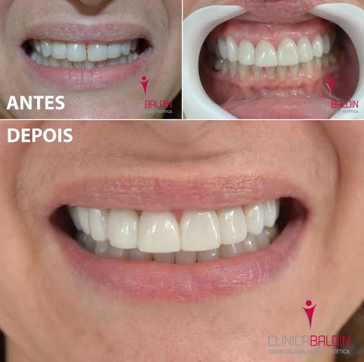Reabilitação estética dos dentes superiores com facetas de resina composta