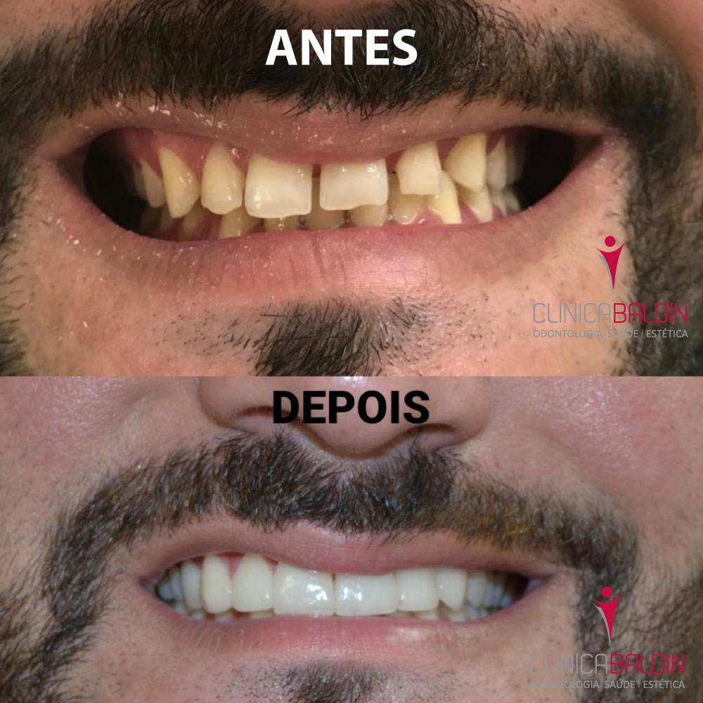 facetas para corrigir formatos e alinhamento após ortodontia