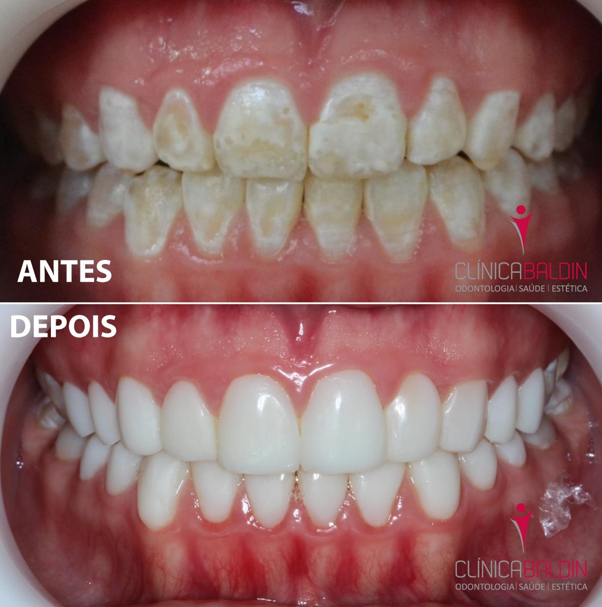 Dentes com hipoplasia antes e depois de aplicação de facetas de resina