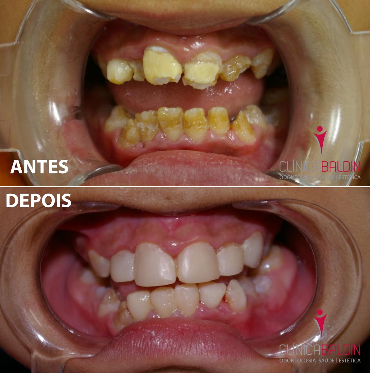 hipoplasia severa com grande comprometimento da estrutura dental