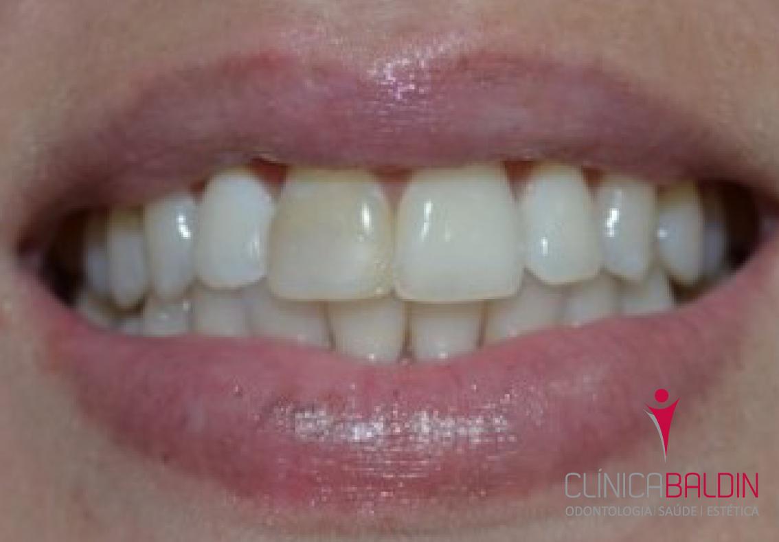 Tratamentos para dentes escurecidos sem vitalidade