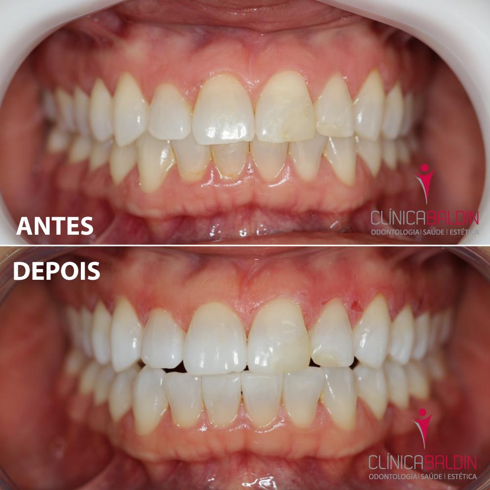 Paciente antes e depois de clareamento dental a Laser em consultório.Observar as restaurações mais escuras após o clareamento dos dentes
