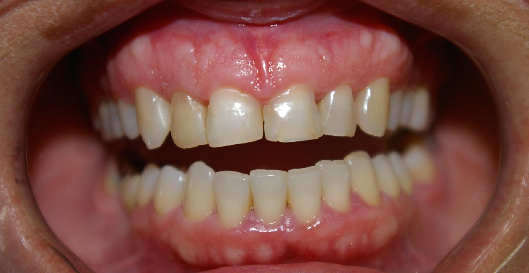 1A-Pac. com dentes anteriores muito restaurados e escurecidos