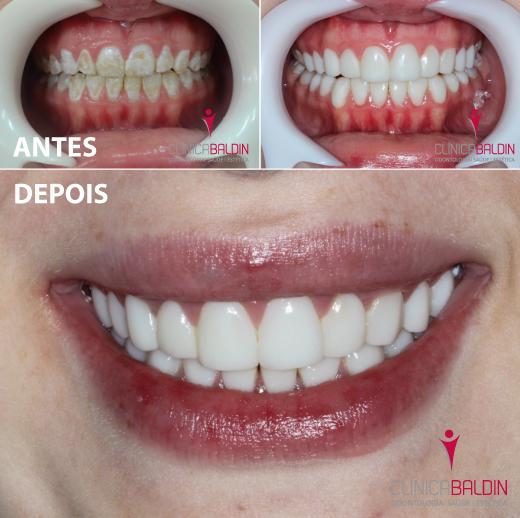 Dentes com hipoplasia de esmalte antes e após tratamento com facetas de resina composta